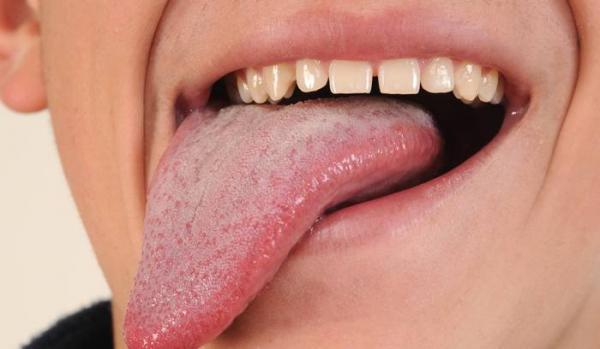 انواع مزه اصلی و اینکه کجای زبان احساس می گردد؟